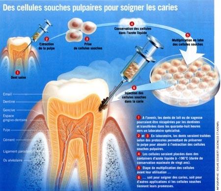 odontologie,cellules souches