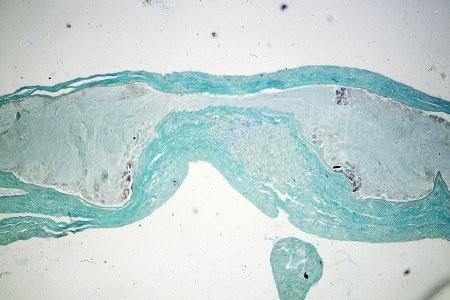 ganglions-cerebroides-381.jpg