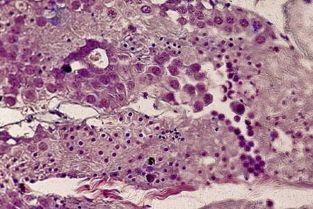 gonade_adulte_spermiogenese_12.jpg