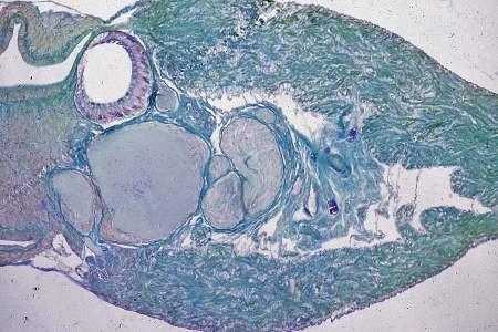 tentacule oculaire571.jpg