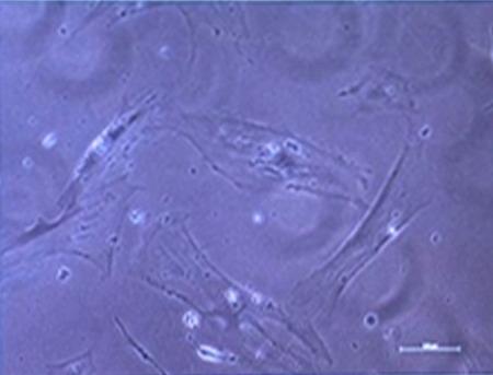 Montpellier - laboratoire INSERM - 01_cellules humaines avant traitement