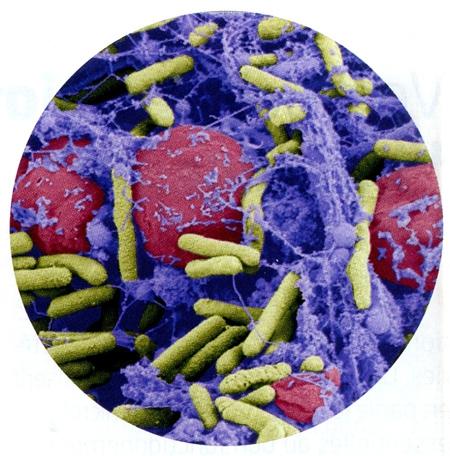 bactéries,résistance aux antibiotiques,nouvaus antibiotiques,nanomédicaments,phagothérapie,bactériophes,antibiotiques intelligents,éligobitiques,biofilms