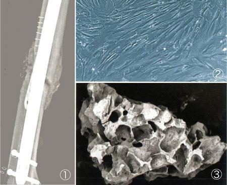 cellules souches,cellules souches adultes induites,cellules souches embryonnaires,ectoderme,endoderme,mésoderme,œuf,cellules germinales,gonocytes,cellule totipotente,cellule souche embryonnaire,cellule souche adulte,cellule souche multipotente,pluripotent stem cells,pst,cellules souches pluripotentes induites,ipsc,hesc