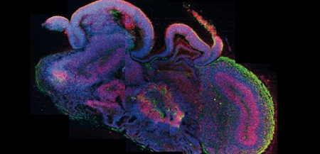 Coupe-transversale-d'un-mini-cerveau-obtenu-par-culture-de-cellules-souches-450.jpg